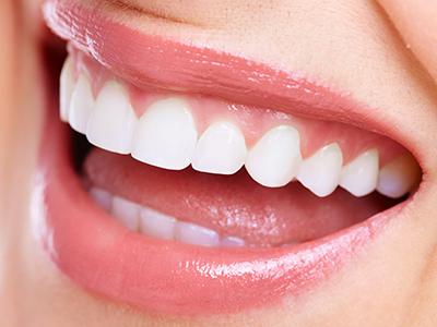 「白くて美しい歯で口元をきれいに」審美歯科